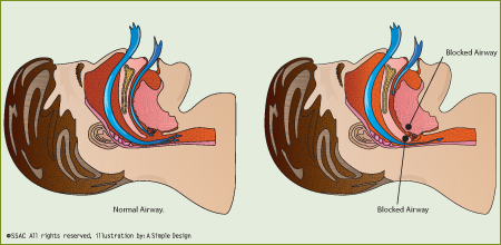 illustration of Snoring