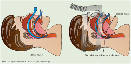 illustration of CPAP