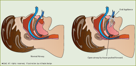illustration of an Oral Appliance